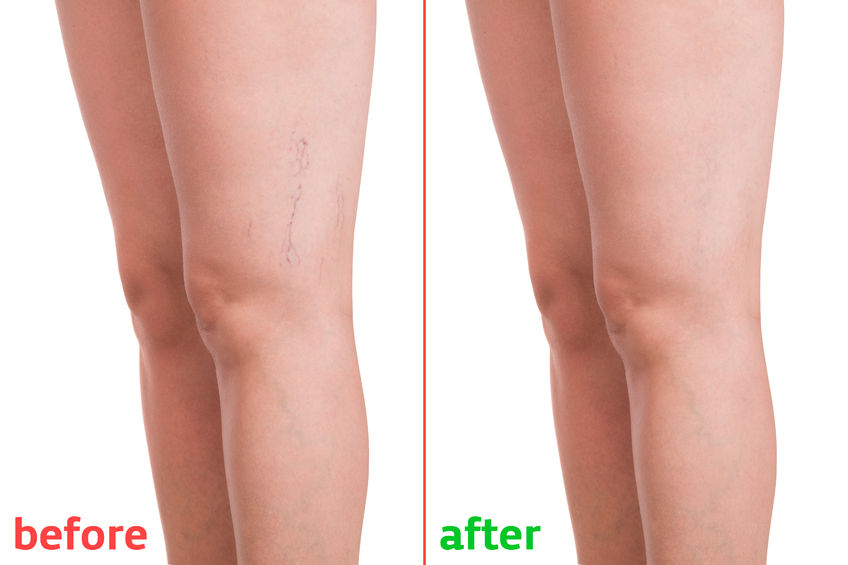 80913036 - treatment of varicose before and after. varicose veins on the legs.